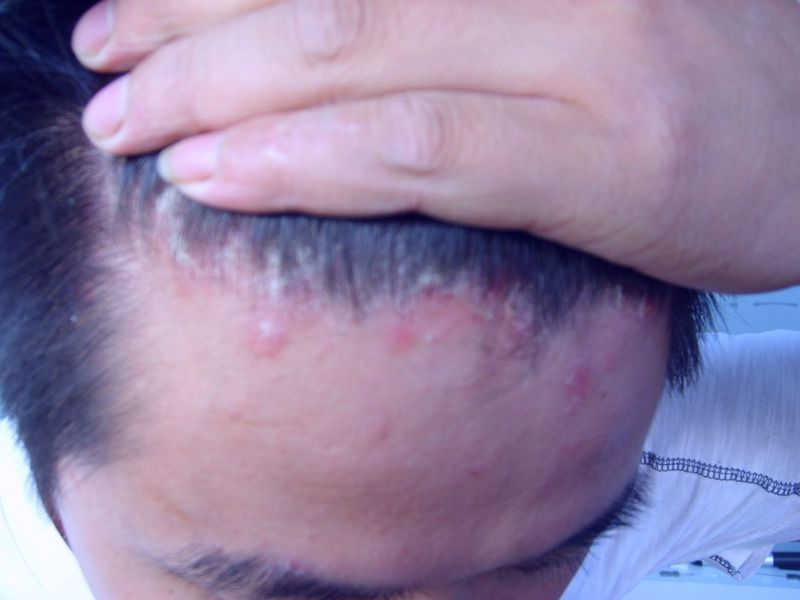 头皮银屑病的症状有哪些