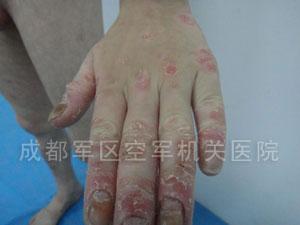 银屑病的症状都有哪些呢