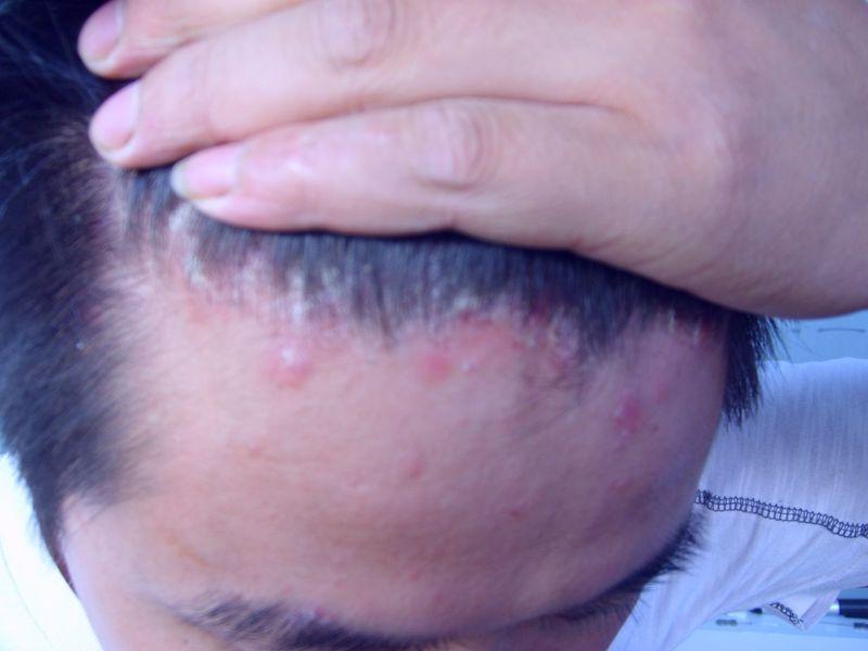 头部银屑病症状图片