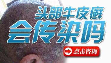 儿童头部牛皮癣要怎么去治疗