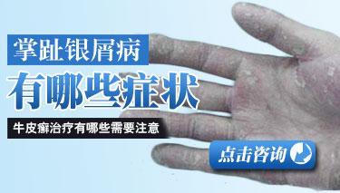 掌跖脓疱型牛皮癣的症状表现