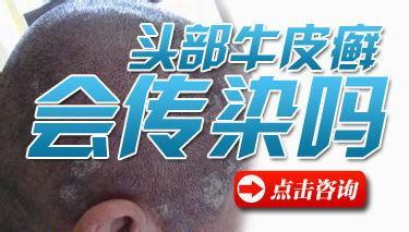 牛皮癣究竟传染不传染?