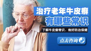老年牛皮癣患者有什么注意